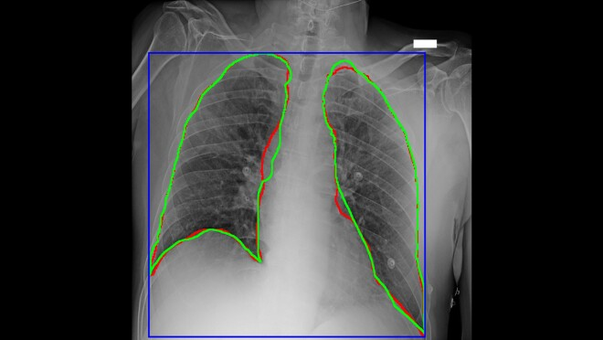 Diagnostic imagery of a lung, illustrating work as part of AWS Diagnostic Data Initiative