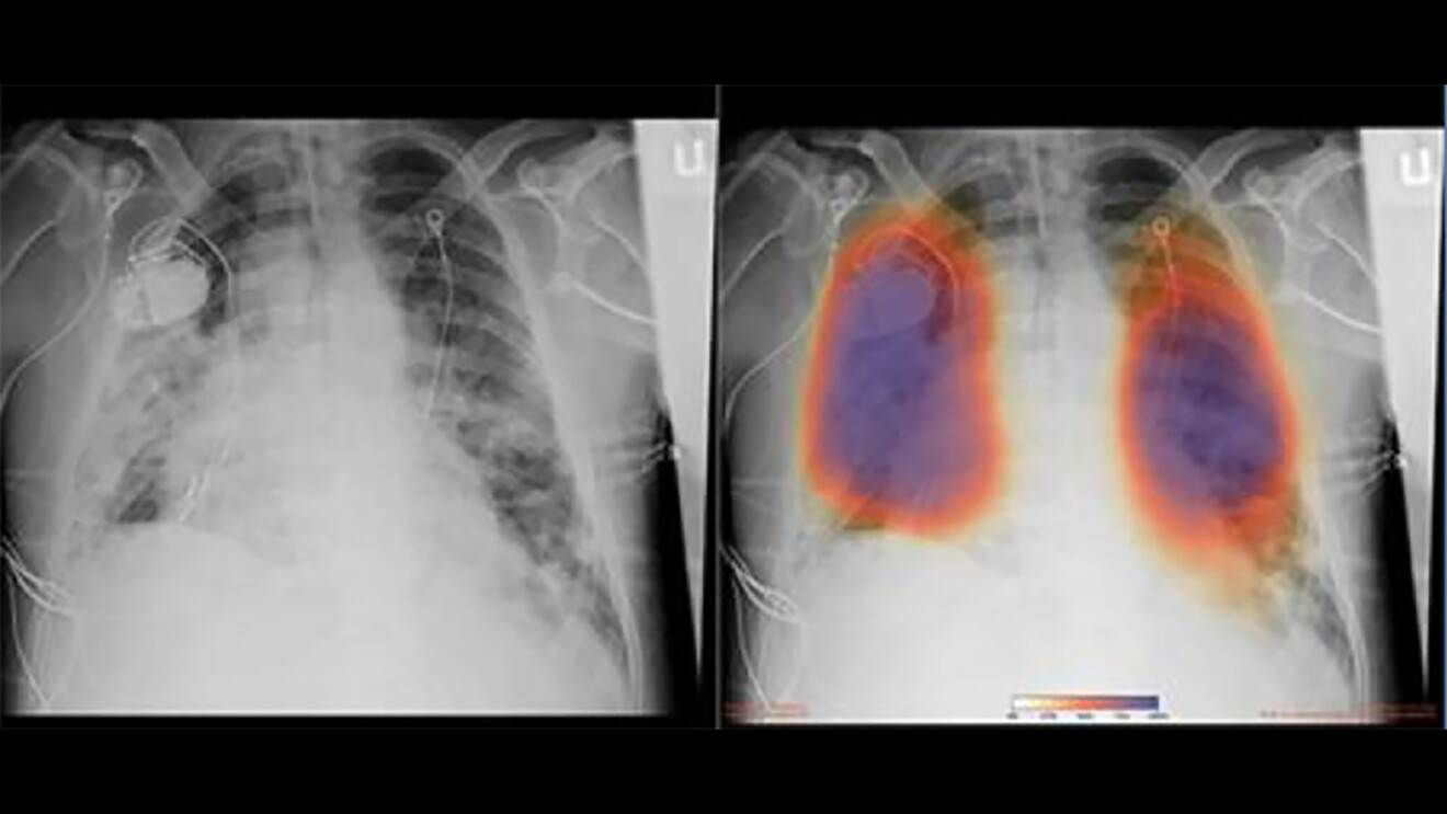 Chest X-rays from a patient with COVID-19 pneumonia, original x-ray (left) and AI-for-pneumonia result (right)